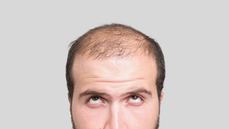Cure-For-Baldness